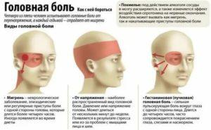 Мигренозные боли каждый день