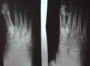 Не сросшийся перелом 5 плюсневой кости