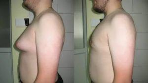 Увеличение одной молочной железы