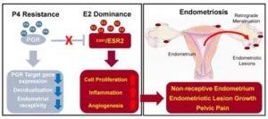 Эндометриоз и низкий прогестерон