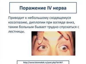 Двоение глаза при взгляде вверх и вниз