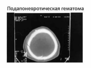 Подапоневротическая гематома
