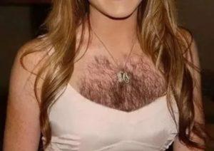 Волосы на сосках