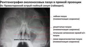 Негомогенное содержимое основной пазухи