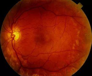 Изменение глазного дна