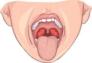 Стоматит на небном язычке