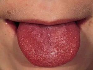 Жжение языка и отек в горле