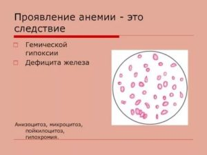 Гипохромия I. Пойкилоцитоз I у 6-ти месячного ребенка