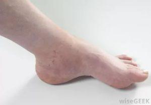 Волдыри на щиколотке правой ноги