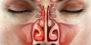 На протяжении шести лет заложен нос