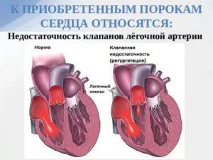 Дисфункция клапана легочной артерии