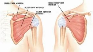 Субтотальный разрыв сухожилия надостной мышцы