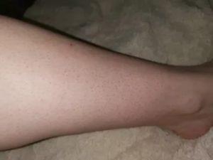 Красное пятно после бритья