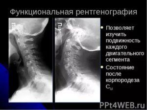 Функциональный блок на рентгенограмме