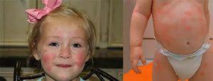 Увеличенная печень у ребенка, аллергия и глисты