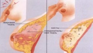 Болит грудь через неделю после месячных