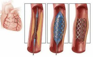 Боли в груди после стентирования