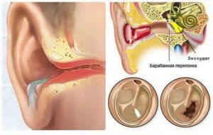 Массаж при отите среднего уха