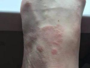 Красное пятно у запястья, при нажатии болит
