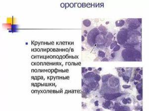 Единичные клетки с крупными ядрами