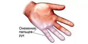 Немеет левая рука