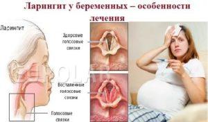 Фарингит во время беременности