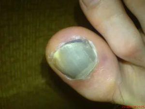 Красная точка под ногтем руки не травма болит куда обращаться
