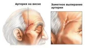 Болит голова, вздулась вена на голове, головокружение
