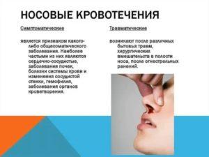 Частые носовые кровотечения на протяжении 2 лет после аденотомии?