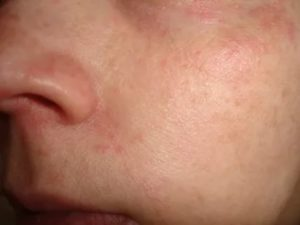 Красная мелкая сыпь на лице