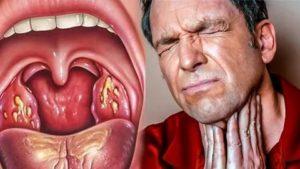 Боли в горле больше полугода