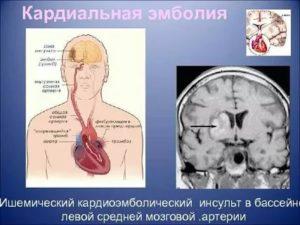 Допустимая нагрузка после инсульта. Диагноз-ишемический(атеротромботический)  инсульт в бассейне ЛСМА,