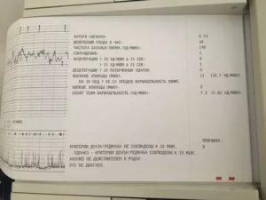 Расшифровка КТГ, не соблюдены критерии Доуз-Редмана