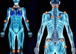Нервные тики по всему телу