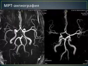 Расшифровка МРТ и МРА, артерии головного мозга