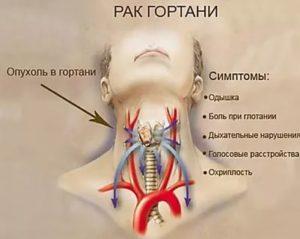 Боль под миндалиной