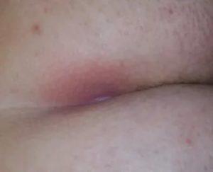 Прыщи возле половых губ