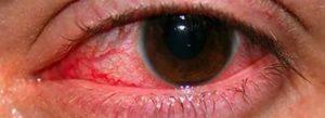 Сосуды в глазу и фиолетовое пятно