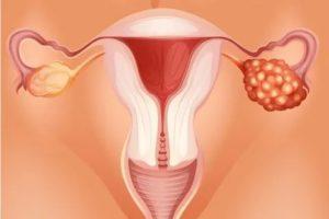 Воспаление яичников при ГВ