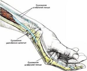 Боль в кисте при сжатии кулака или взятии предмета
