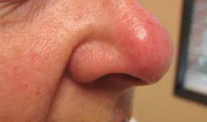 Красное пятно на носу
