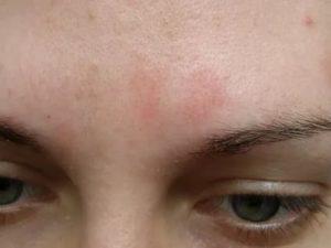 Красное сухое пятно на лице