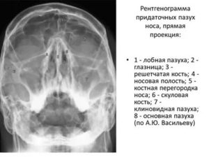 Расшифровка снимка носа