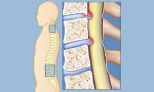 Фораминальный стеноз