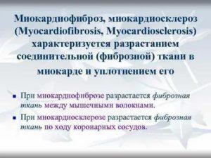 Миокардиофиброз