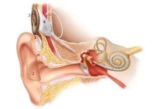 Усиление слуха (высоких частот) после вымывания пробки