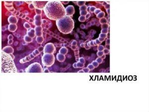 Гонорея, хламидиоз, гепатитC