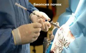 Биопсия почек в Москве
