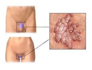 Продолжительный зуд половых губ и ануса