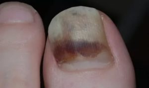Гематома или меланома подногтевая